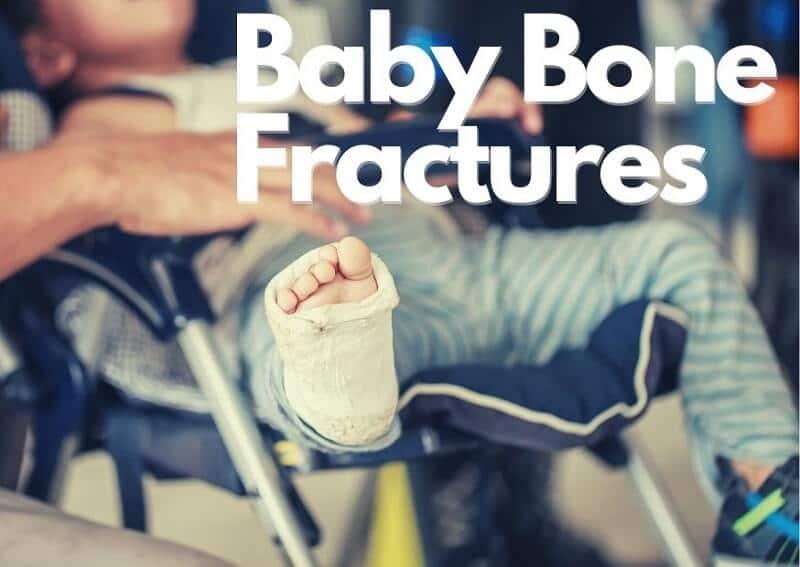 Baby Bone Fractures
