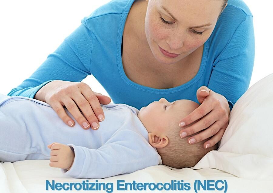 Necrotizing Enterocolitis
